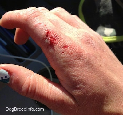Close Up - Bloody dog bite on the index finger with flapping skin